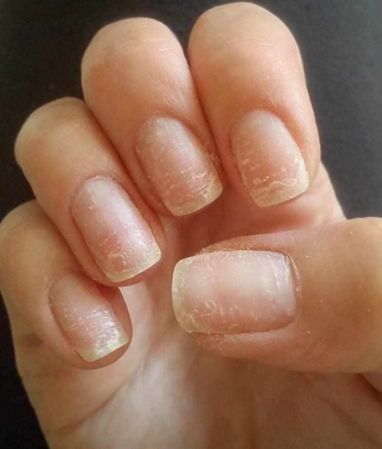 Расслоение ногтей на руках