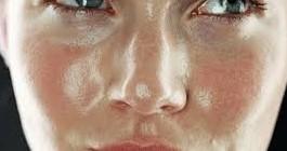 Лицо с жирным типом кожи