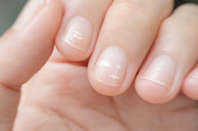 лейконихия ногтей