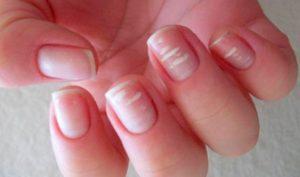 на ногтях появились белые проявления