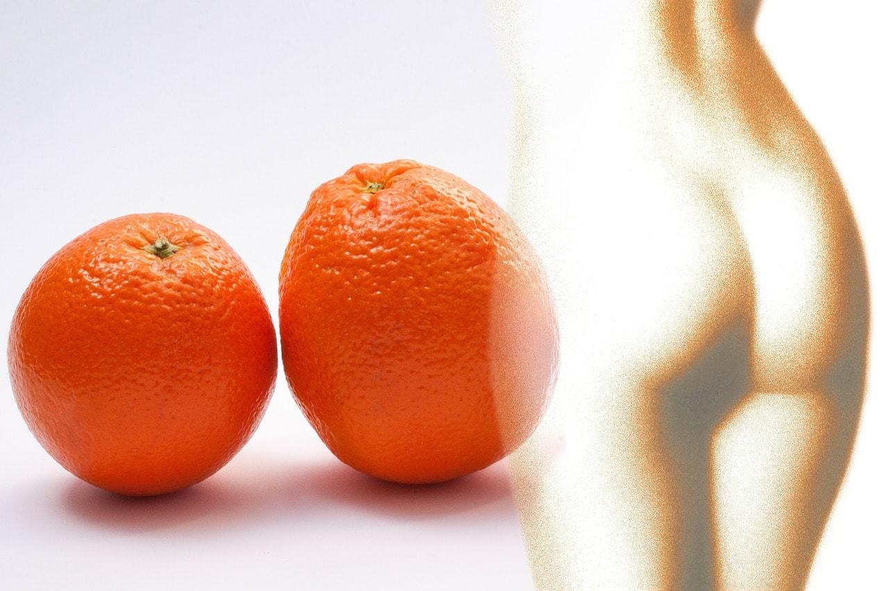 Апельсиновая корочка на ногах