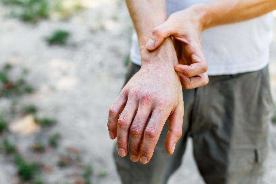 Экзема аллергическая на руках