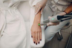 Лазерная эпиляция на руках